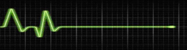 electrocardiograma plano (testamento de ojos verdes)
